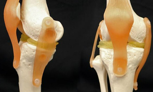 An internal view of three-dimensionally printed knees.